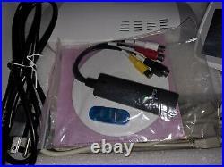 Medical Digital Zoom SONY CCD Color Video Camera Ekectronic Colposcope + Tripid